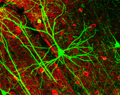 Алкоголь препятствует образованию новых нервных клеток
